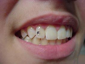 Piercing no Dente – Fotos e Modelos